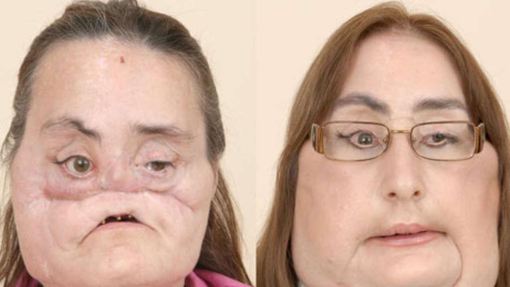 Transplantation eines kompletten Gesichts | Welt