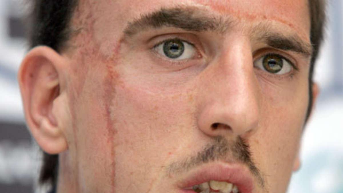 Как сделать шрам на лице в домашних 479