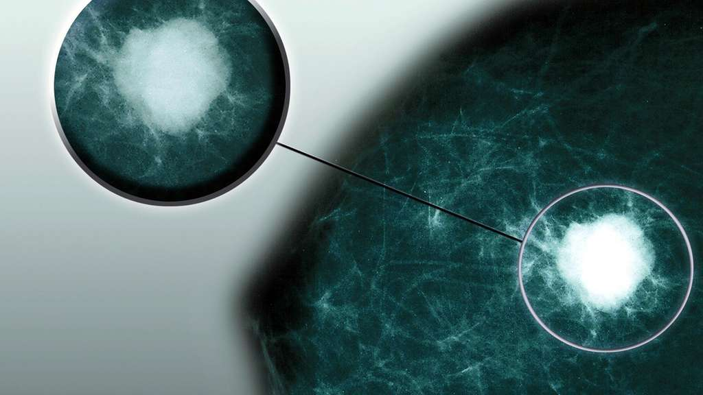 Risiko Brustkrebs: Veranlagung, Vererbung, Genetik