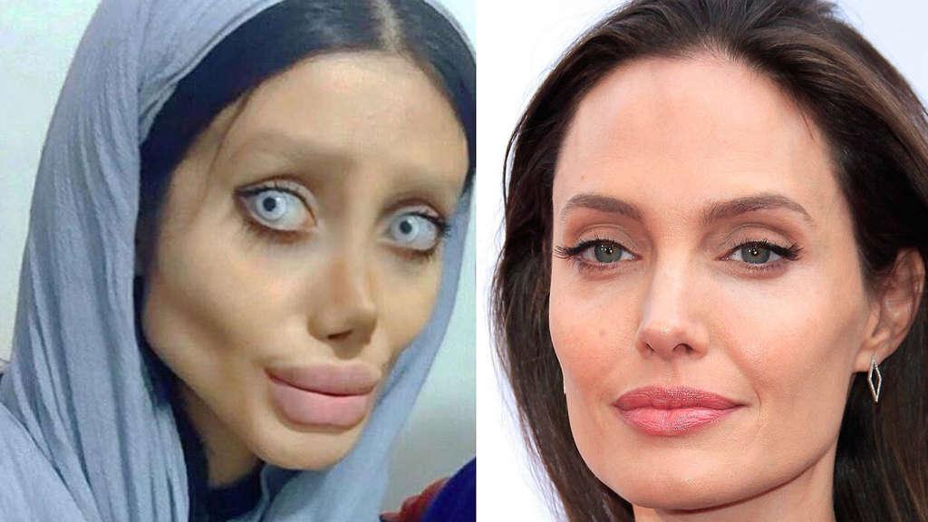 OP-Sucht: Sie möchte wie Angelina Jolie aussehen