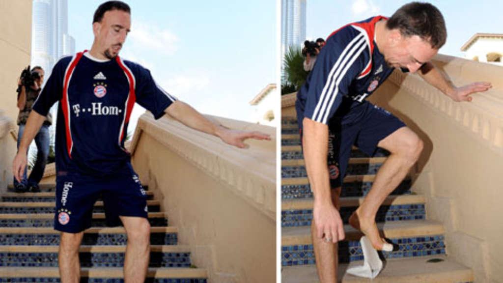 Außergewöhnlich Probleme mit den Zehen - Was Franck Ribéry und Victoria Beckham &FP_62