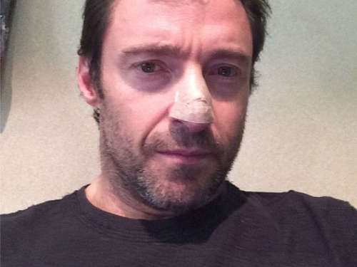 Hugh Jackman: Hautkrebs-Diagnose
