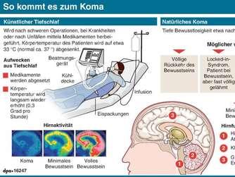 Website zur Gehirnverletzung