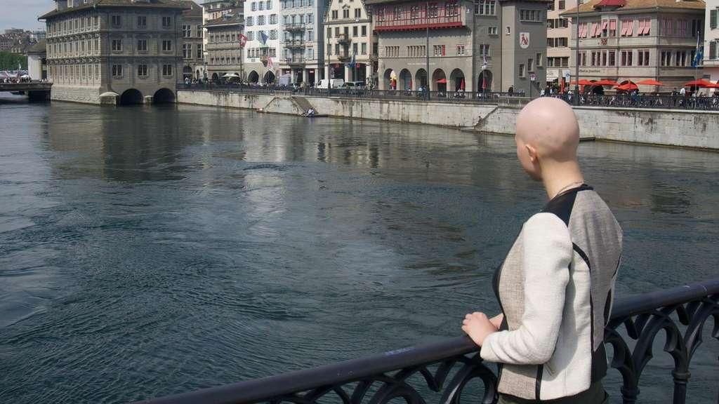 Seltene Krankheit Carinas Leben Mit Dem Haarausfall Gesundheit