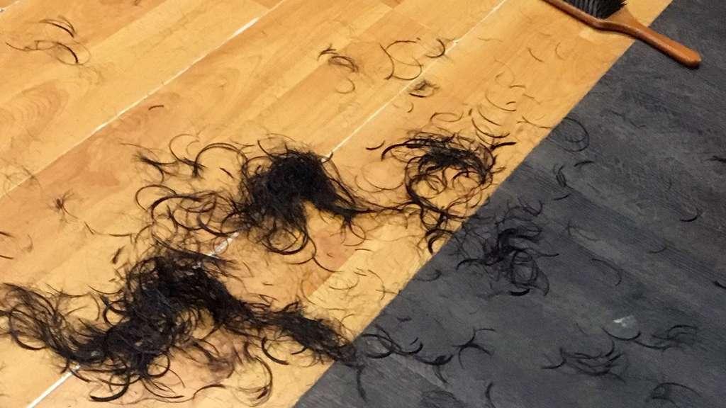 kopfhaut brennt haare fallen aus