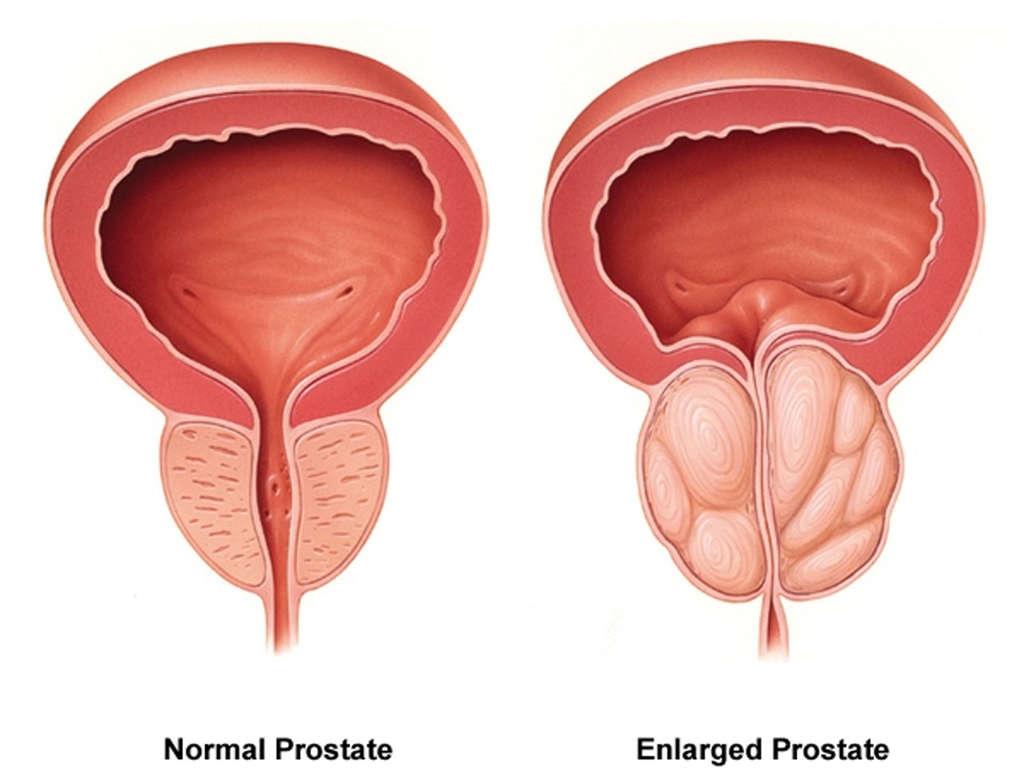 prostatakrebs spirituelle bedeutung