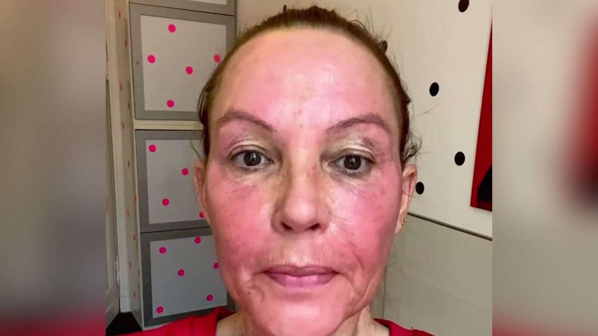 Natascha Ochsenknecht: Schock-Aufnahme! Was ist mit ihrem Gesicht passiert? - tz.de